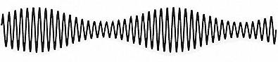 Modulation d'amplitude figure 2.2.1.3.png