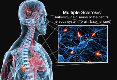 A concept illustration of the brain, spinal cord, and nerves that are affected by multiple sclerosis.