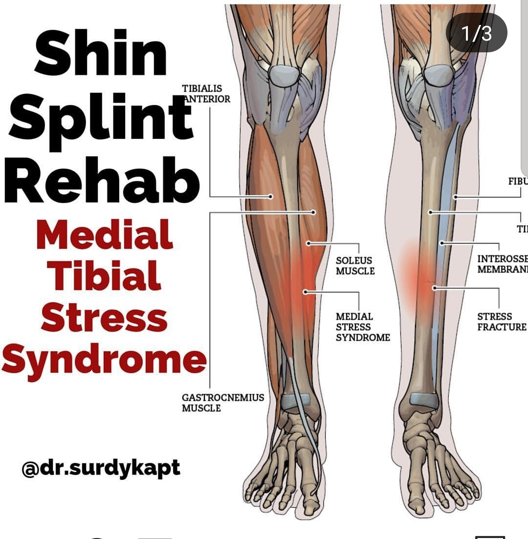 Move Forward From Your Shin Splints The Spot Athletics