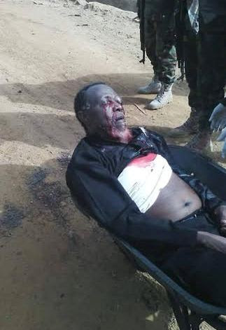 zakzaky wounded.jpg