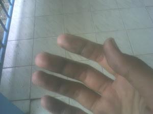 bekas sidik jari