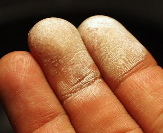 File:Hydrogen peroxide 35 percent on skin.jpg