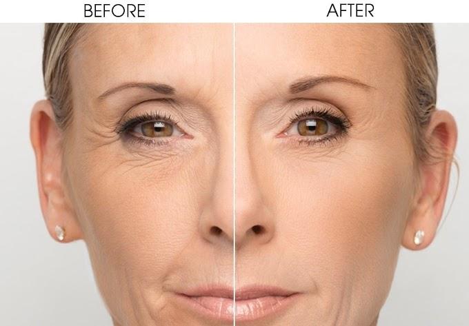 Kelebihan Menjalani Rawatan Kecantikan Fotona 4D Lifting