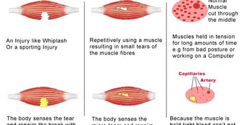 scar tissue forms  muscles infographic traditional