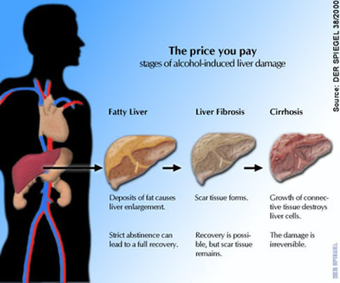Image result for liver diseases and alcohol