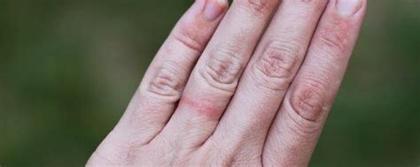 Are You Allergic To Your Wedding Ring?   Titanium Rings