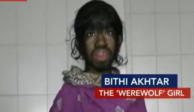 Bithi Akhtar apresenta excesso de pelo no corpo (Foto: Reprodução/India Today)
