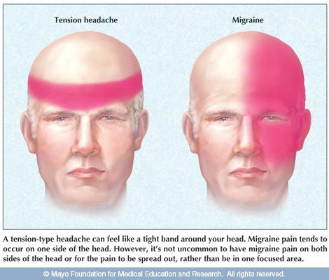 headaches and migraines - what is the difference