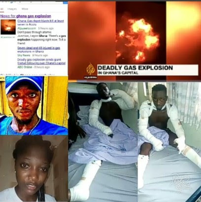 Pics Of Actress Juliet Okeke's Brother Who Survived Explosion At Gas Station In Ghana