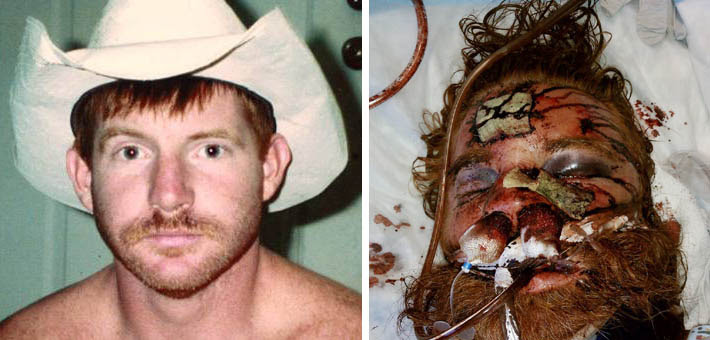 Before and after photo illustrates extent of Thomas' injuries.
