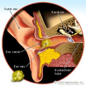 Masalah Telinga