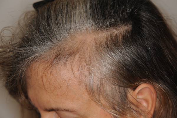 Female Pattern Hair Loss International Journal Of Endocrinology And Metabolism Full Text