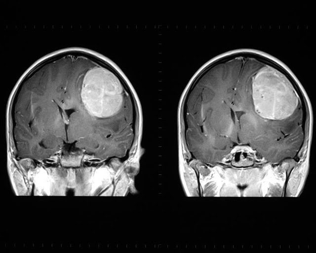 Image result for mri brain scan tumor