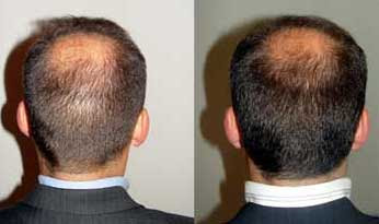 Ruston Clinic Hair Transplant Surgery