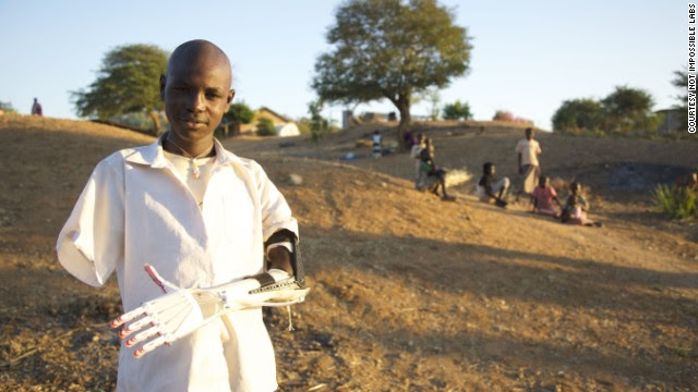 Daniel is a Sudanese boy who lost both arms when a bomb exploded a few meters from him. When American Mick Ebeling heard Daniel's story, he decided to do something to help.