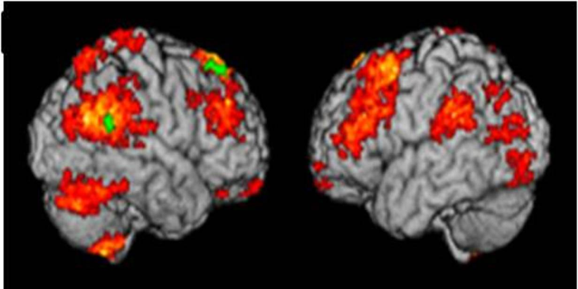 A brain scan can diagnose depression - Business Insider