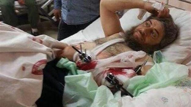 Τουρκικό νοσοκομείο για τον πολέμαρχο της ISIL…
