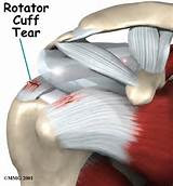 Images of Rotator Cuff Injury