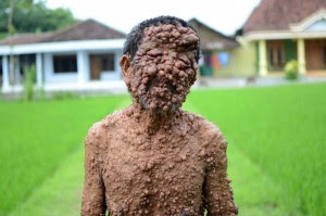 Man-With-Disfiguring-Skin-Disease-2997781