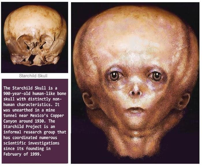 El misterio detrás del cráneo del Starchild: ¿Los restos de un antiguo extraterrestre?