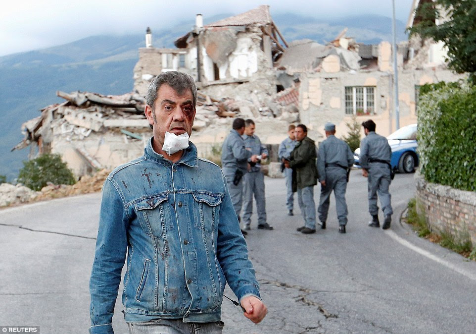 A wounded man with a bandage on his chin walks along a collapsed road in the town of Amatrice