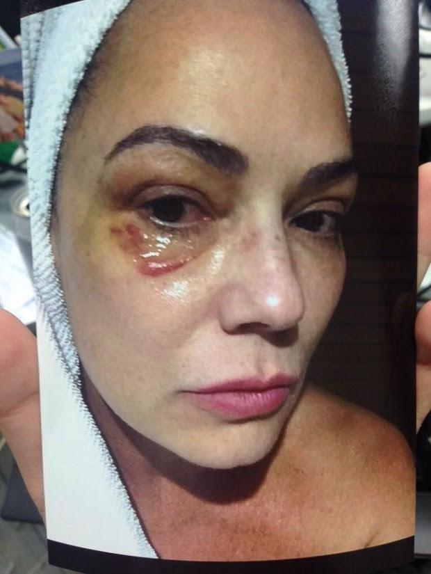 Luiza Brunet em foto feita após agressão que ela afirma ter sofrido do ex-marido, Lírio Parisotto (Foto: Reprodução Fantástico)