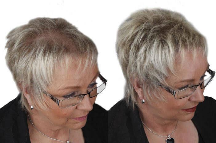 Schütthaar Gegen Haarausfall Dünnes Haar Und Kahle Stellen