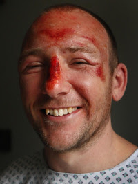 Adam Potter, from Glasgow, after his fall.