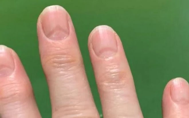Выявлен новый индикатор заражения COVID-19: «ковидные ногти»