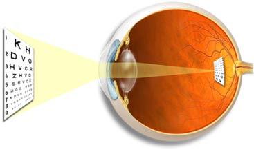 En la miopía la imagen se forma antes de llegar la luz a la retina. Tomada de www.stlukeseye.com