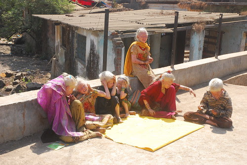 The Albino Beggars At The Foot of The Malangad Mountains by firoze shakir photographerno1
