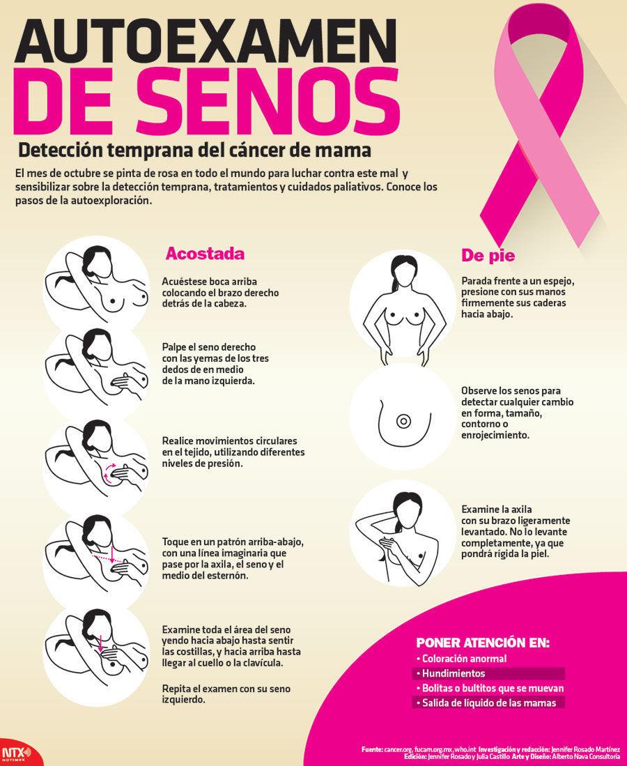 Nueva terapia contra cáncer de mama reduce 19% la posibilidad de progresión de la enfermedad