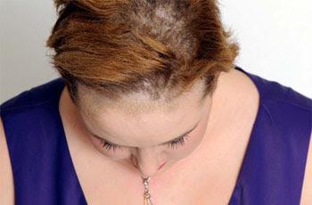 Pilz Der Kopfhaut Symptome Diagnose Behandlung Krankheiten