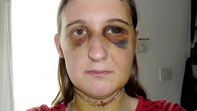 Natalie Allman was battered by Jason Hughes in a seven-hour attack.
