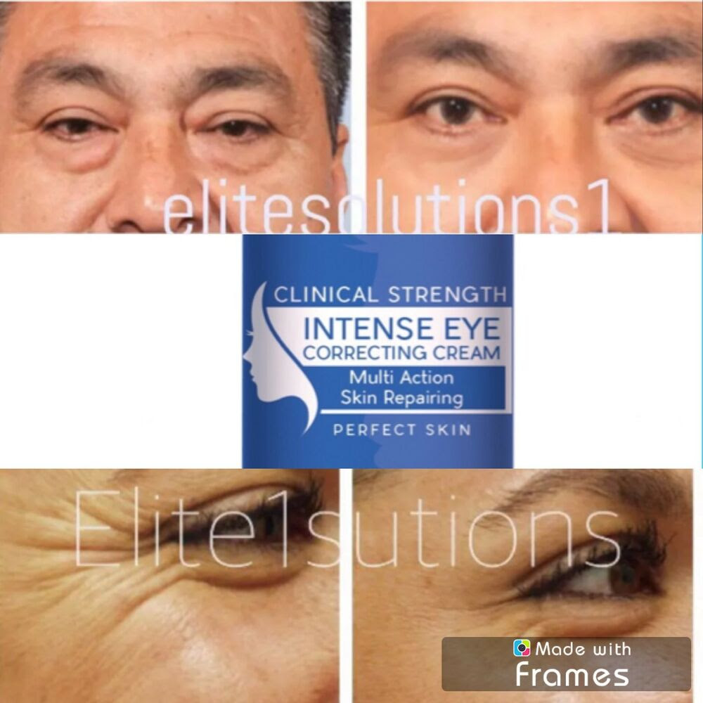Under Eye Cream Remove Dark Circles Bags Face Lines ...