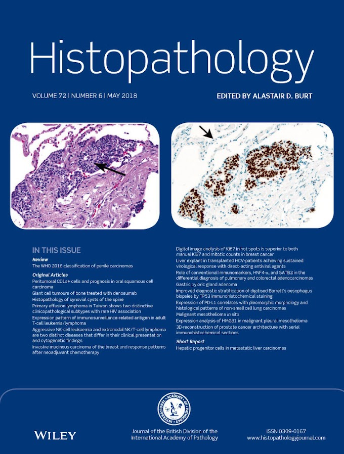 Malignant Mesothelioma Histology