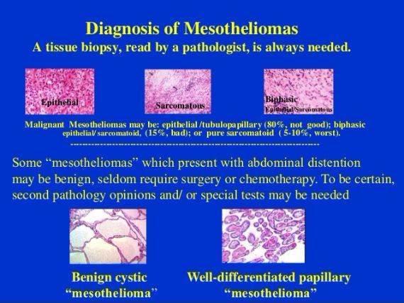 Understanding Malignant Epithelial Mesothelioma  MesotheliomaCancer