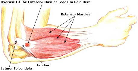 Tennis Elbow Causes