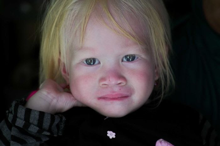 For a child to be albino both parents must carry a gene.