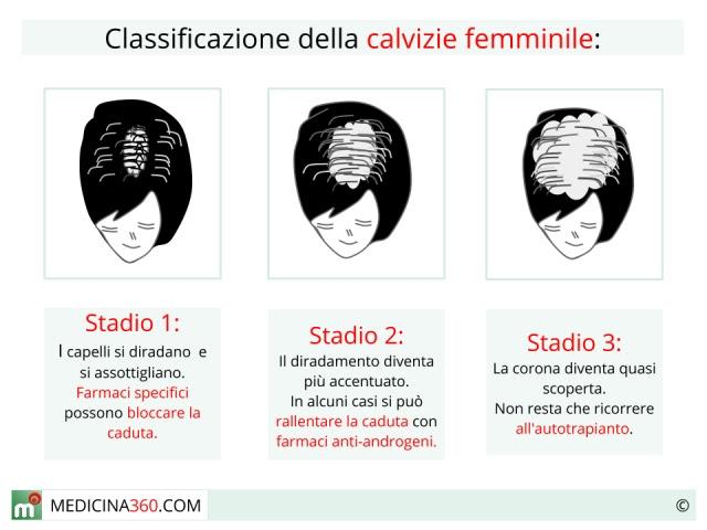caduta capelli donne cause e rimedi - La caduta dei capelli cause tipologie sintomi rimedi