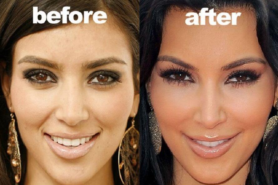 Kim Kardashian plastic surgery allegations