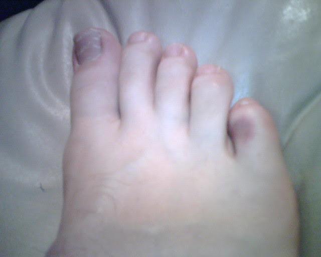 Broken toe   Flickr - Photo Sharing!
