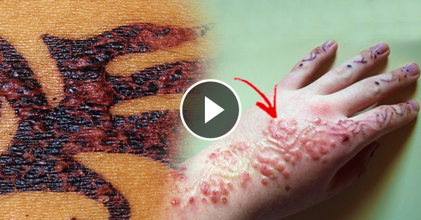 Henna Tattoo And Nut Allergy: 'Black Henna' Tattoo Causes Allergic Reaction To Skin That