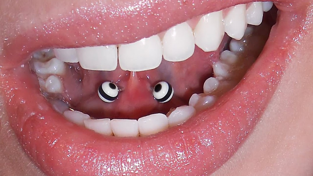 What Your Dentist Wants You To Know About Your Oral Piercings