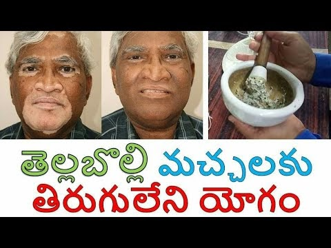 How to Cure Vitiligo at Home in Telugu