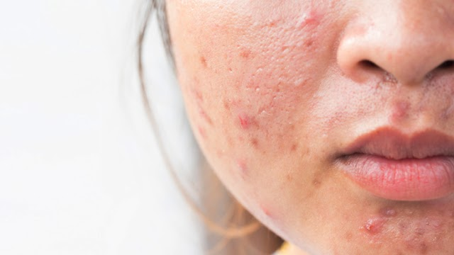 home remedies for acne scars.