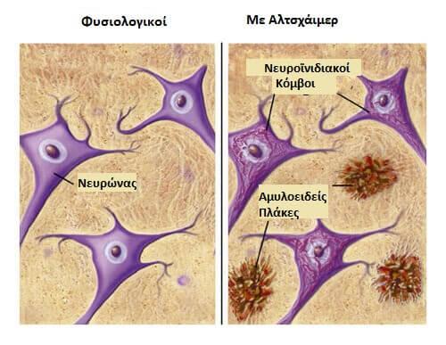Τροφές που προστατεύουν από το Αλτσχάιμερ