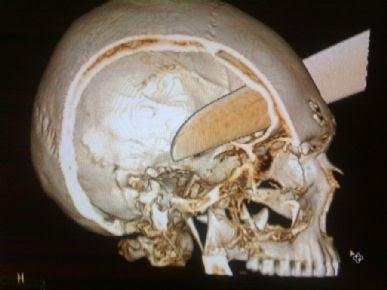 Pedreiro é encontrado vivo com faca de 20 cm na cabeça no interior de SP