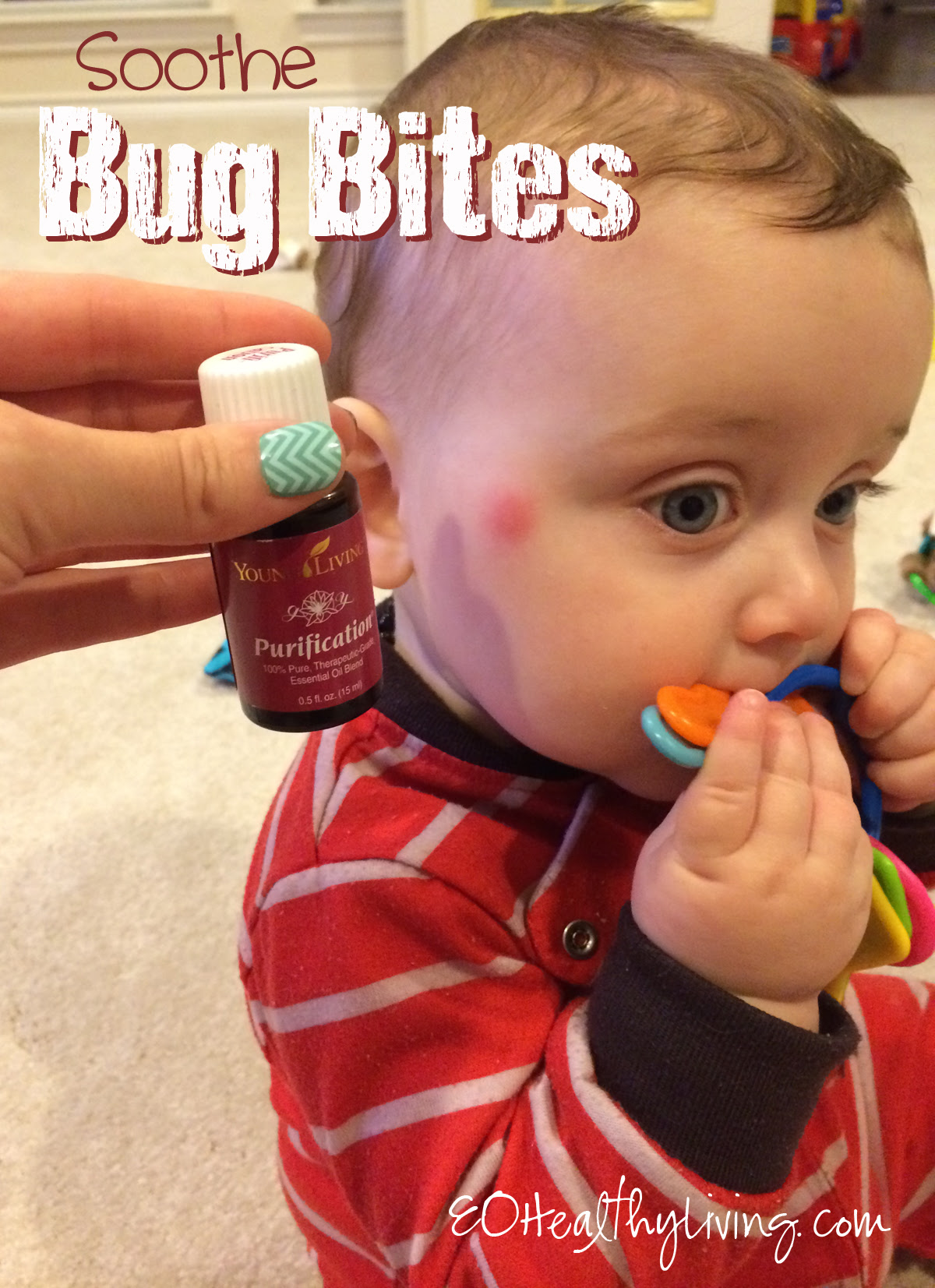 Soothe Bug Bites with Purification Essential oil by Young Living