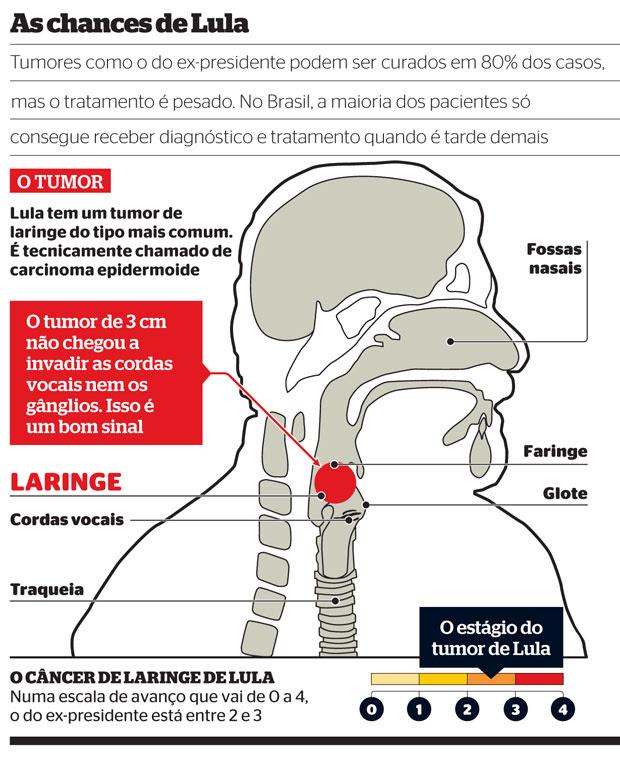 Lula01 (Foto: reprodução)